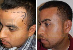 dr-richard-ochs-temporal-peak-hair-transplant
