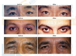 eyebrow-transplant-restoration-dr-richard-ochs