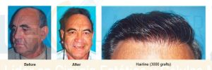 hairline-3000-grafts-dr-richard-ochs