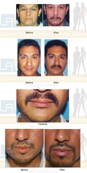 moustache-transplant-restoration-dr-richard-ochs
