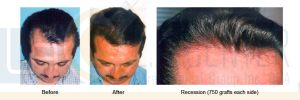 recession-1500-grafts-dr-richard-ochs