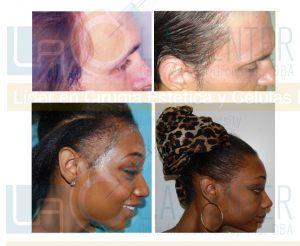 sideburn-peak-hair-restoration-dr-richard-ochs1
