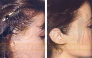 woman-sideburn-peak-hair-restoration-dr-richard-ochs
