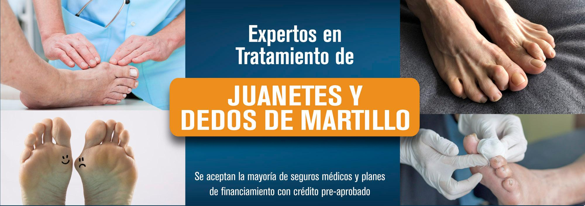 Web_banner_Juanetes